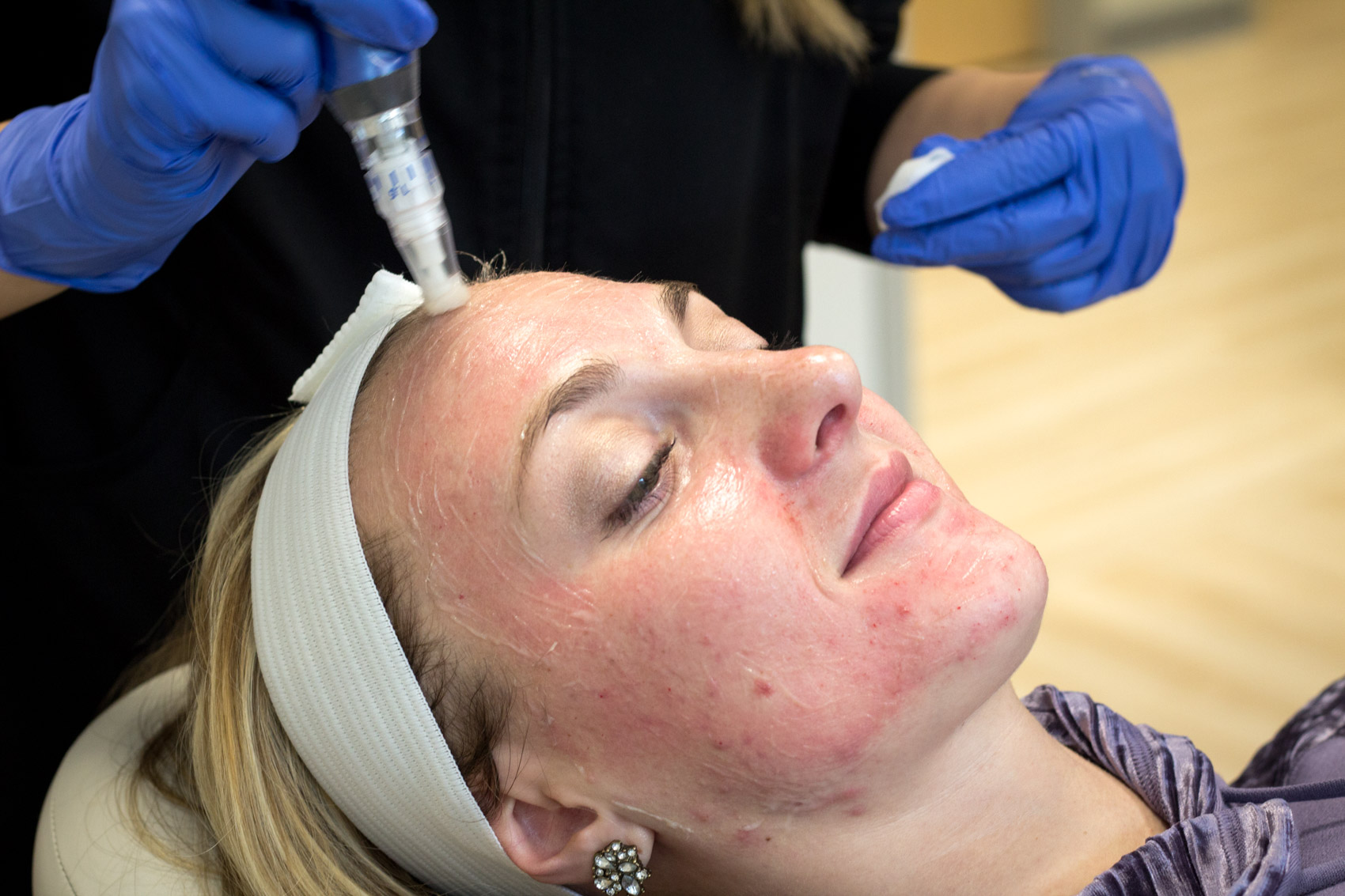 I tried it: A review of my microneedling treatments with the SkinPen at Sistine Plastic Surgery in Pittsburgh. Microneedling is a skincare procedure that has been praised for its anti-aging benefits and is also known to help with hyperpigmentation. Read the post to read more on microneedling for acne scars and if it worked for me.